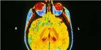image: Study: Student Athletes Display Brain Abnormalities After One Football Season
