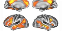 image: Pregnancy May Remodel the Brain's Social Cognition Regions