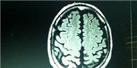 image: Infant Brain Scans May Predict Autism Diagnosis