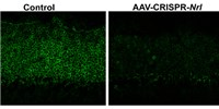 image: CRISPR-Based Therapy Prevents Retinal Degeneration