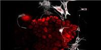 image: Image of the Day: Manipulative Melanomas