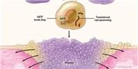 image: Infographic: Inside Melanoma Invasion