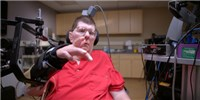 image: Paralyzed Man Moves Arm with Neuroprosthetic