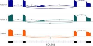 RNA-Seq Reveals Previously Hidden, Genetic Disorder–Causing Mutations