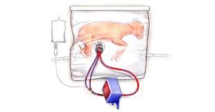 Artificial Womb Supports Premature Fetal Lamb Development