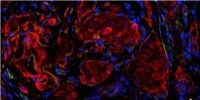 image: Bioengineered 'Pancreas' Effective in First Patient
