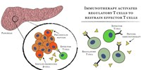 image: Immunotherapy Promising for Diabetes: Study