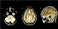 image: Image of the Day: Telling Scans