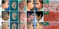 image: Children Receive Bespoke, Lab-Grown Ears