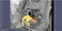 image: Image of the Day: Infection Imaging