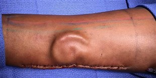 Army Surgeons Grow Ear in Soldier's Arm