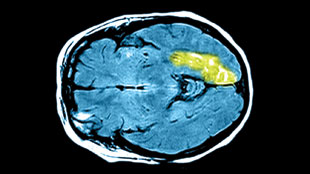 MRI image showing a stroke involving the left temporal-occipital region (green).