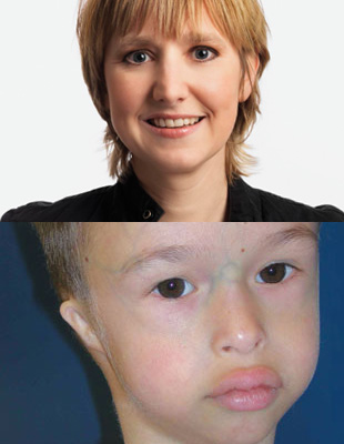 Clinical geneticist Ernie Bongers (top) and 5-year-old Meier-Gorlin syndrome patient (bottom) showing small and simply formed ears, a beaked nose, and full lips—all symptoms of the condition.