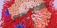 image: Model Liver