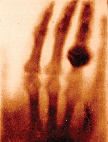 image: The First X-ray, 1895