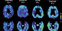 image: Down Syndrome brains look like Alzheimer's
