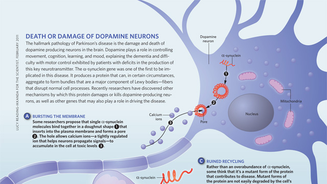 image: Death or Damage of Dopamine Neurons
