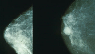 image: Prostate Drug for Breast Cancer?