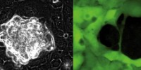 image: Ovarian cancer forces into new tissues