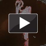 Video: CT scanning mummies