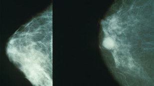 image: Cancer Researcher Fabricated Data