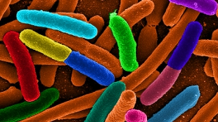 A digitally colorized micrograph image of E. coli