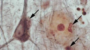 A photo from one of Alois Alzheimer's first patients, showing a large neuron (dark brown cell, left) with an enlarged microglia clinging to the top right of its cell body. The light beige circle is made of amyloid protein with a darkened plaque at its center. Other enlarged microglia can be seen to the right of the plaque, and below it (arrows).