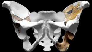 Pelvis of Australopithecus sediba
