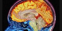 image: New Genes, New Brain