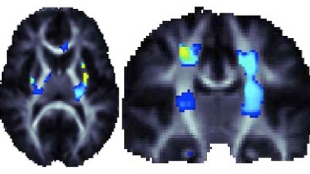 Brain scans showing that a genetic variant that promotes higher brain integrity in the areas highlighted in blue and yellow