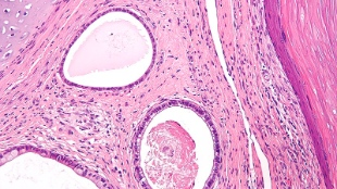 Teratomas with three differentiated layers from stem cells visible.
