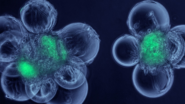 This micrograph shows cells called myoblasts attached to spherical microcarriers, which allow the growth of adult stem cells (green) that have been isolated from skeletal muscle.