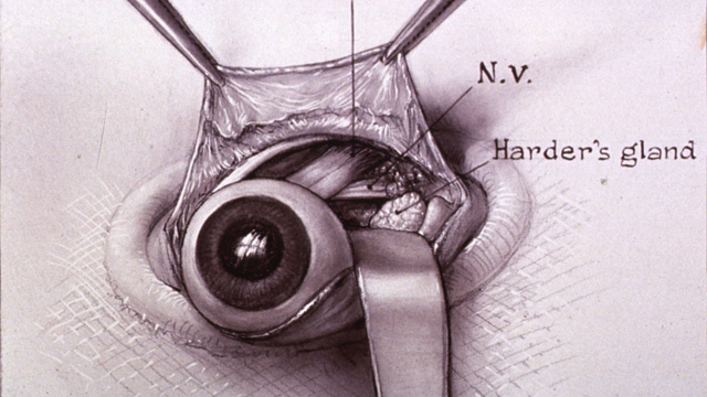 One of five drawings illustrating Johns Hopkins surgeon Warfield Firor's dissection of a rabbit's eye. National Library of Medicine