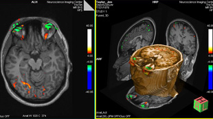 image: fMRI Mind Reader