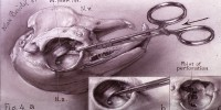 This is figure 4 of five drawings illustration Firor's dissection of a rabbit's eye. It shows the view of a rabbit's skull with two detailed illustrations of left eye cavity indicating the point of perforation.National Library of Medicine