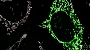 image: Fewer Mutations in Tumor Mitochondria