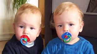 image: Early Epigenetic Influence