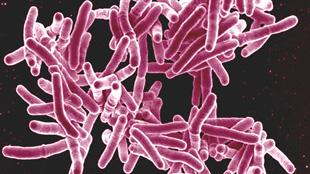 image: Resisting TB