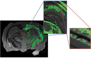 PICTURING RAT BRAIN LIPIDS: Tissue slice shown at different resolutions, down to 5 micrometers (far right). The gray color represents total ions (no chemistry) and the green denotes cholesterol.
