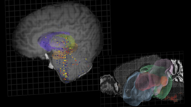 image: Brain Expression